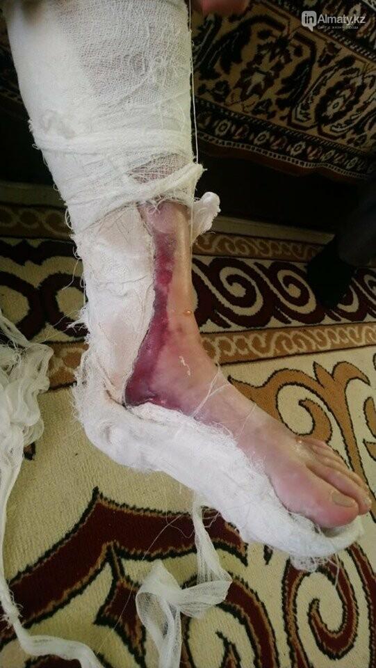 Пенсионерка пострадала в Алматы по вине водителя автобуса, фото-1