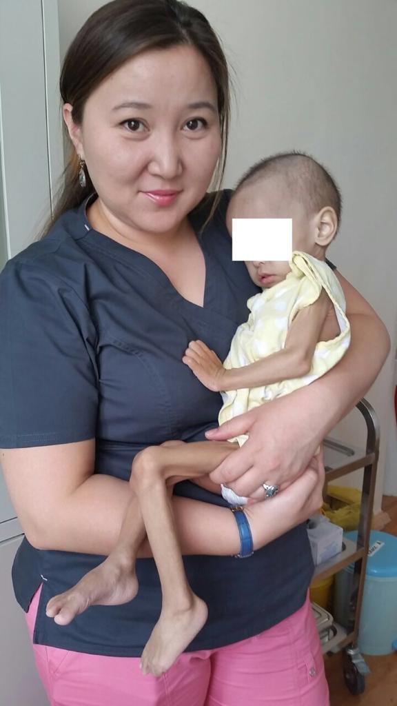 Женские руки хирурга Алматы спасают детские жизни, фото-2