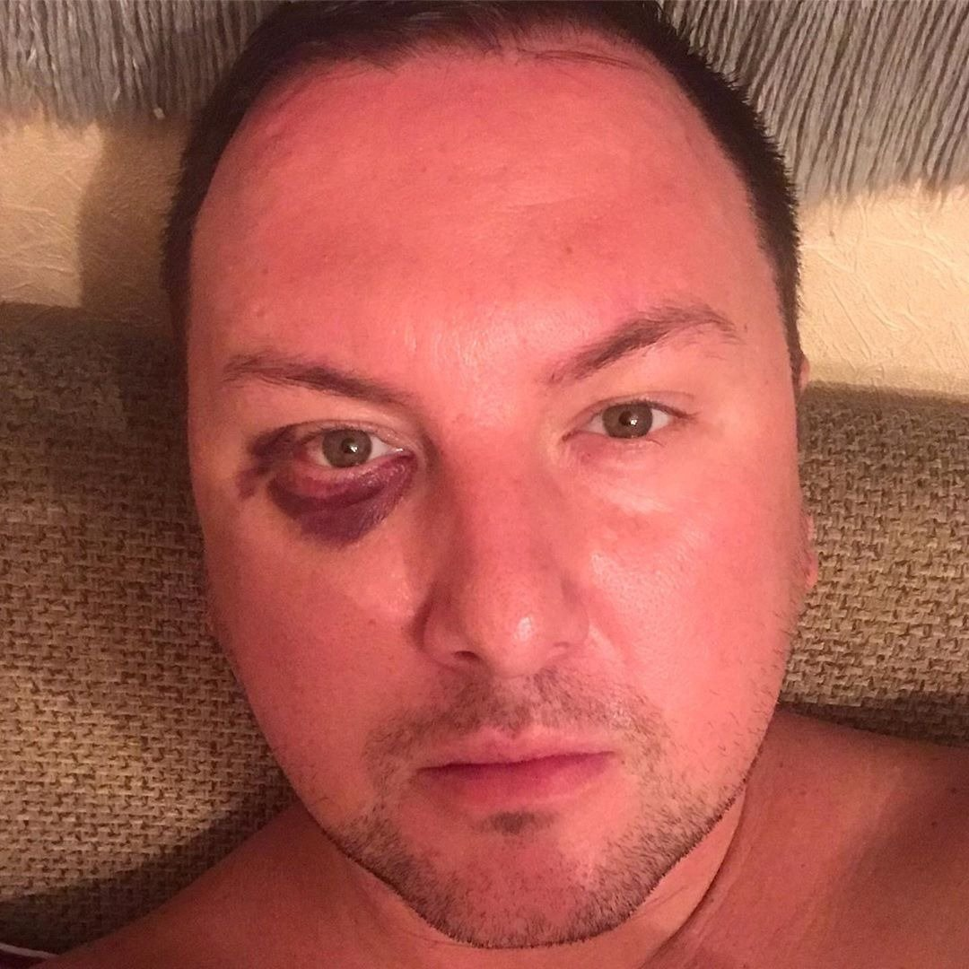 Алматинский шоумен заявил об избиении, фото-1