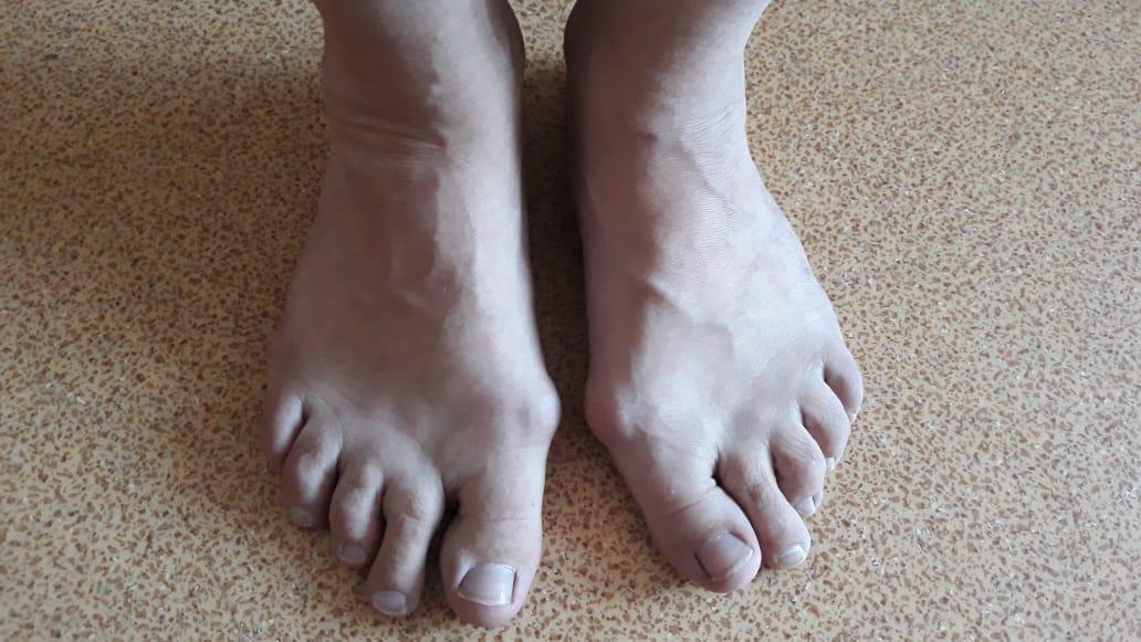 Алматинский хирург рассказал, как избежать образования косточек на ногах, фото-1
