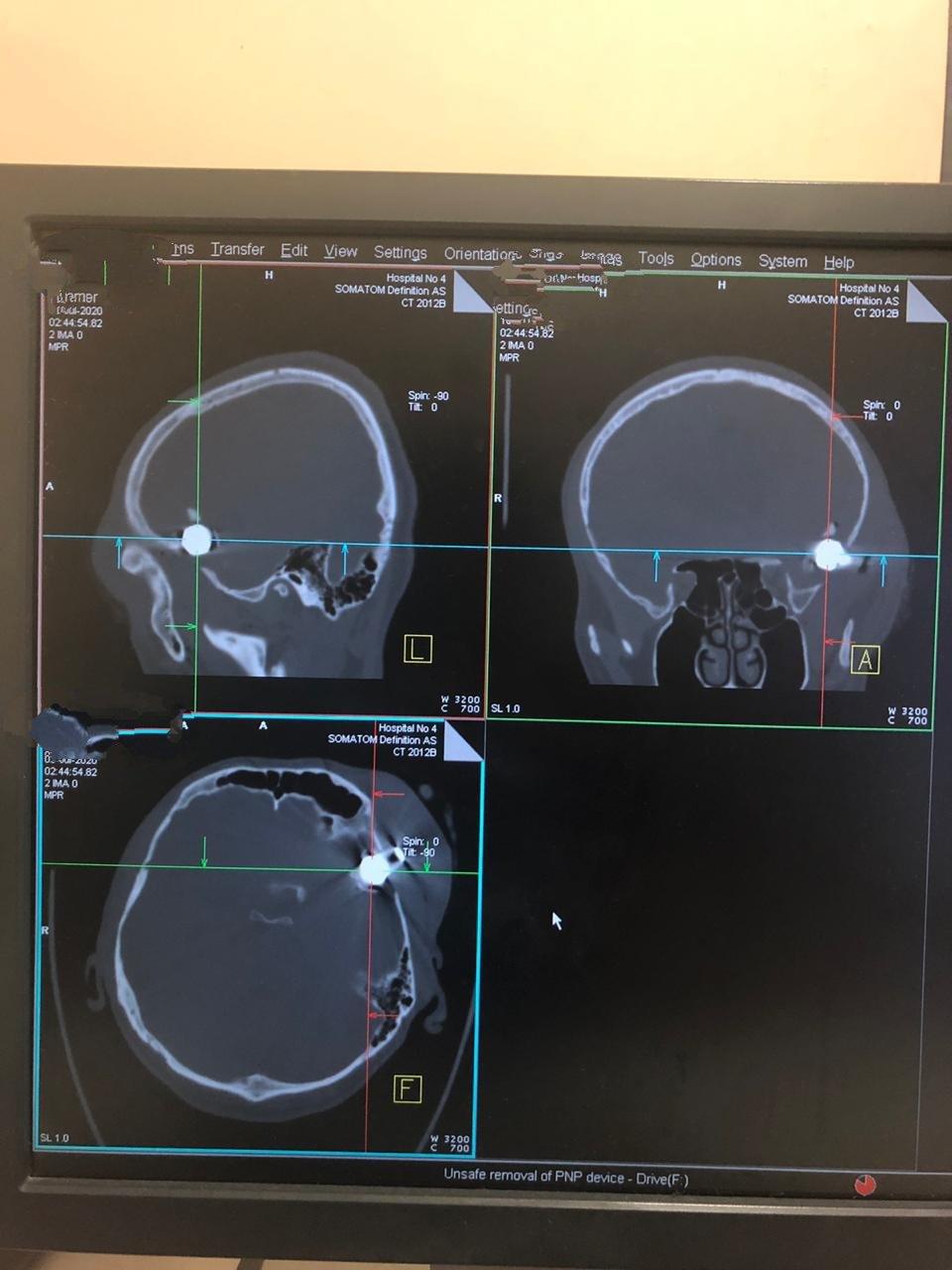 Врачи алматинской больницы извлекли пулю из головы мужчины, фото-1