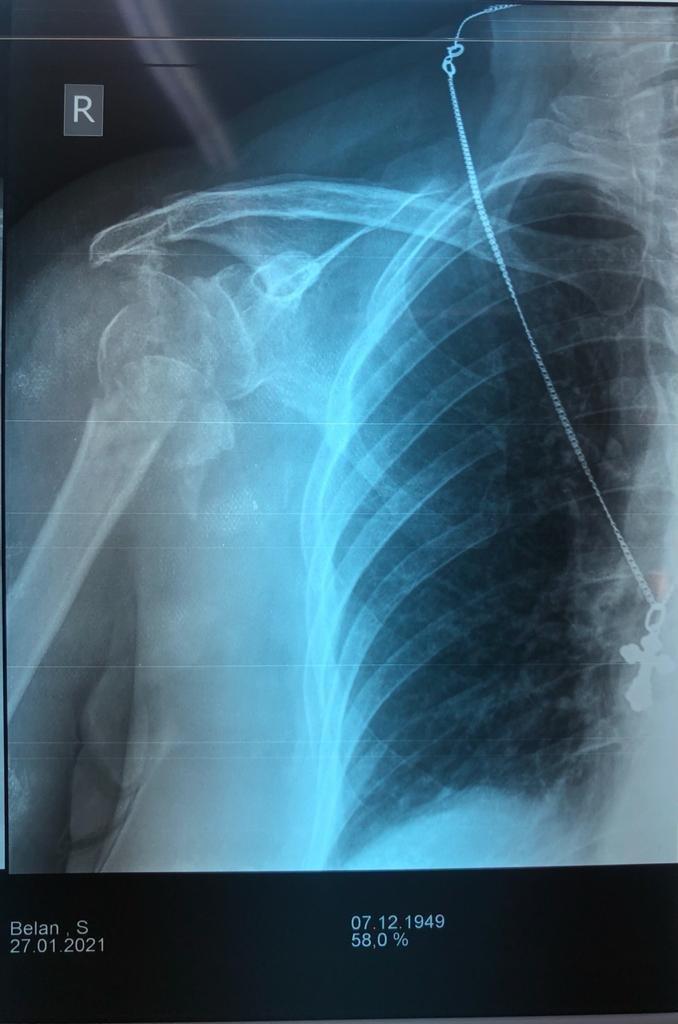 Пенсионерке провели операцию по эндопротезированию плечевого сустава