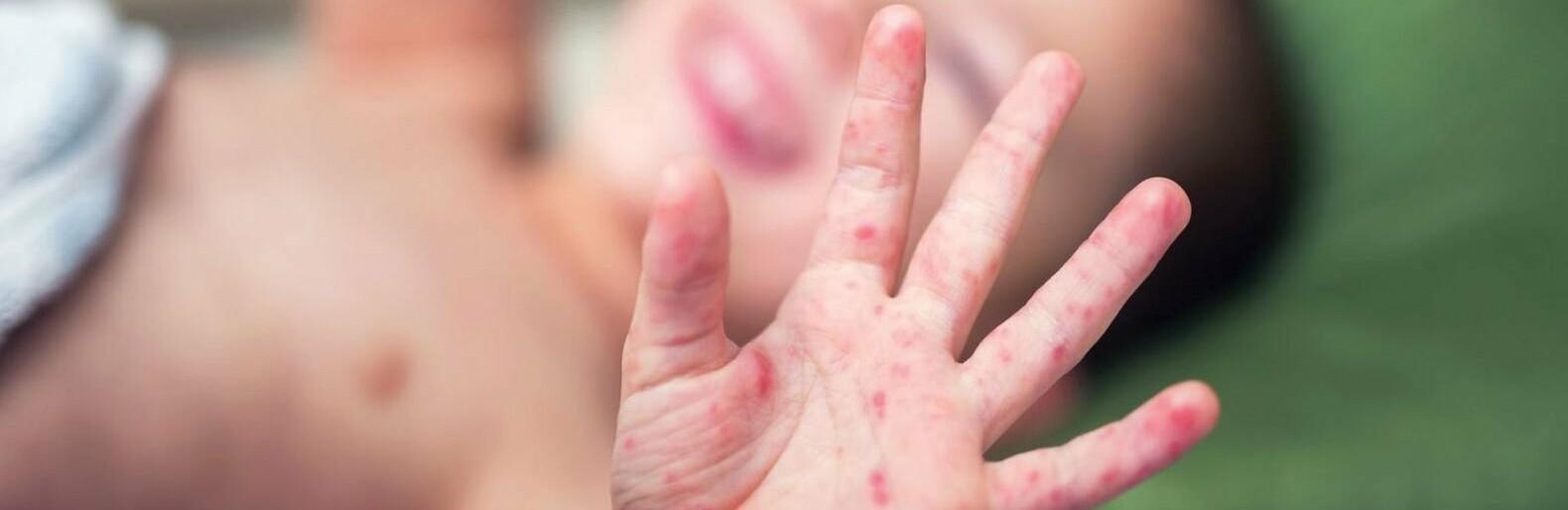 Более 5 тысяч случаев заражения корью, медики настаивают на вакцинации